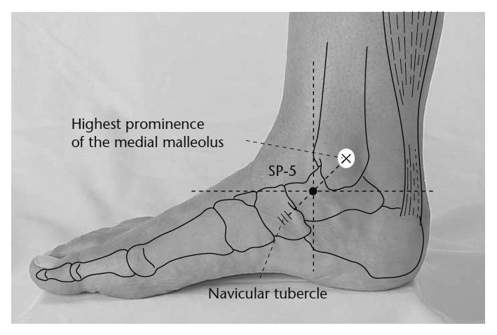 Punto Acupuntura B5 - Esguince de tobillo - MTC